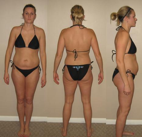 Alisha McGinn First Venus Index Transformation Before