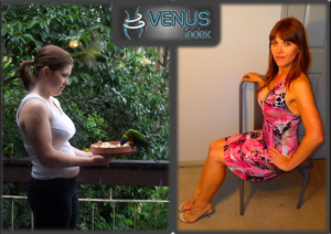 Kirsty side 2 before and after Venus Index smaller
