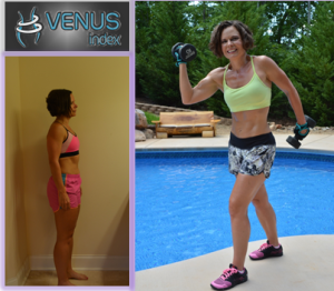 Vanessa before and after Venus side