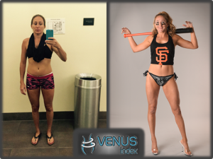 Christine Before and After Venus Front