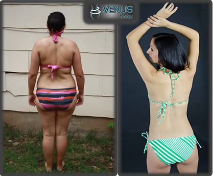 Carly Venus Before and After Back