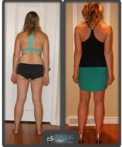 Laura before and after Venus - Back