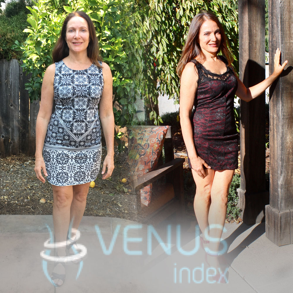 """Daily planning of food to go with you, so you are not tempted by unhealthy choices becomes easy and routine. Choosing to change my mind set to"" Slow and Steady, while incorporating the Venous System has made the difference. Life is not a race. Venus Index bring it on, you rock!!"""